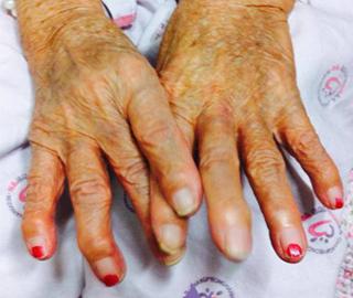 곽ㅇㅇ(89) 할머니